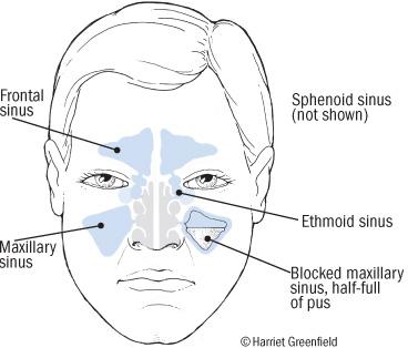 how to get rid of sinus pressure behind eyes